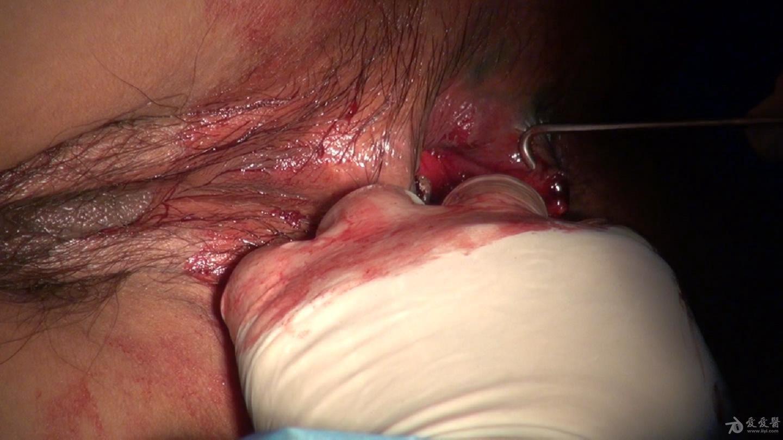 这个是第二个肛瘘内口的肛瘘探针检查情况,我们是完全切开的。