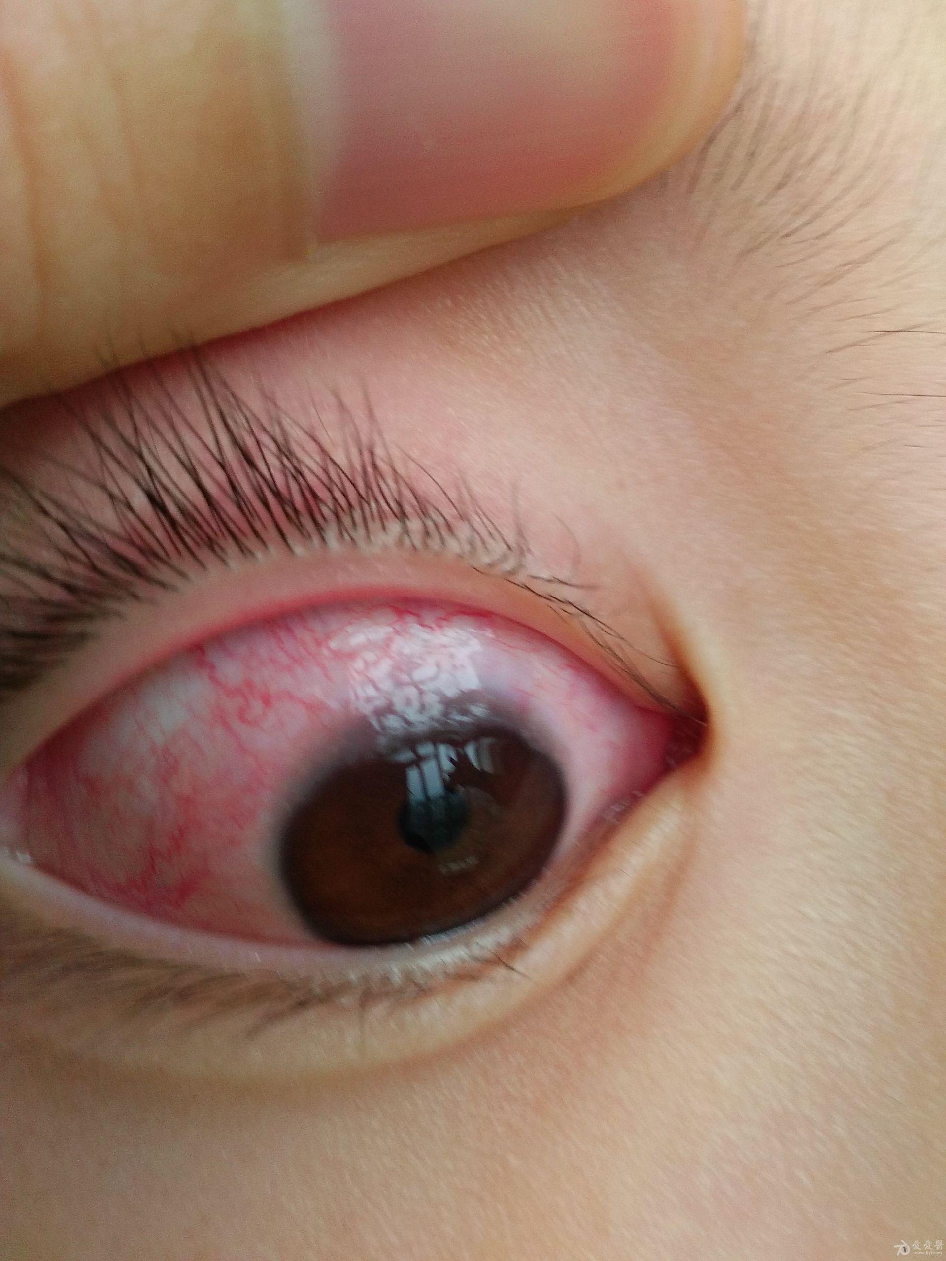 右眼7月最严重时候.jpg