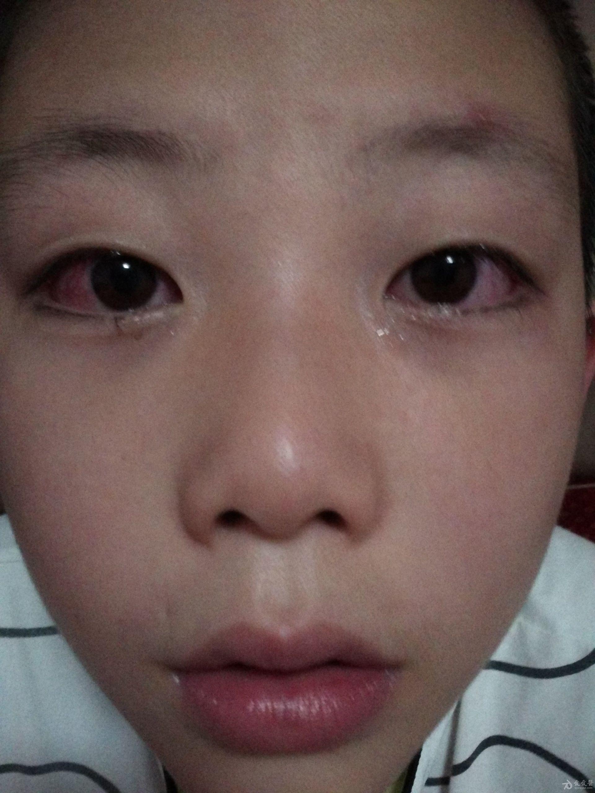 8月双眼充血