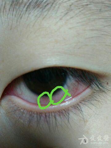 左眼角膜缘白色鼓起2