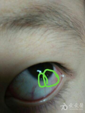 左眼角膜缘白色鼓起1