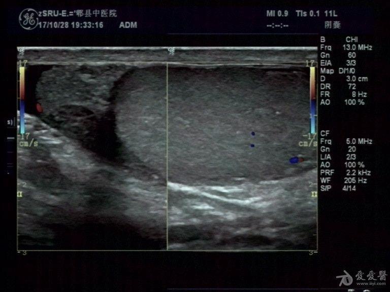 右侧睾丸及附睾