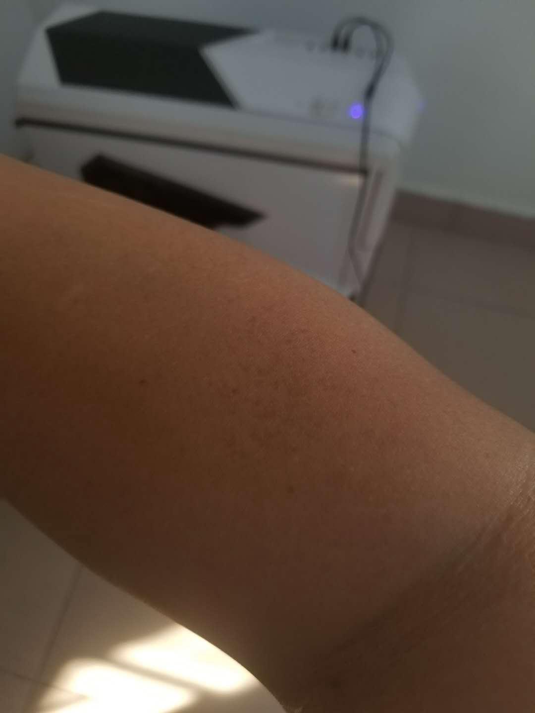 右上肢(近期新发)