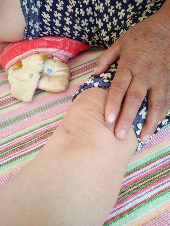 正常的左侧膝关节