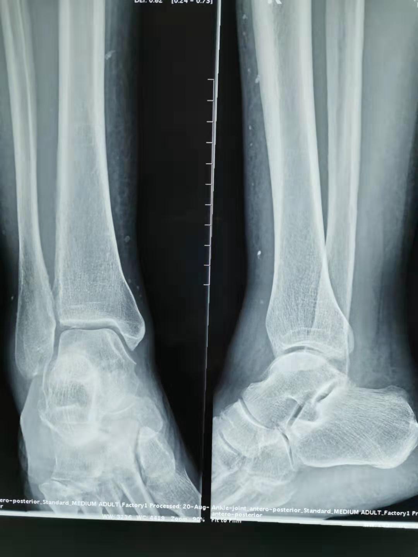 安丽芝右踝及上水肿X片类圆高密度影.jpg